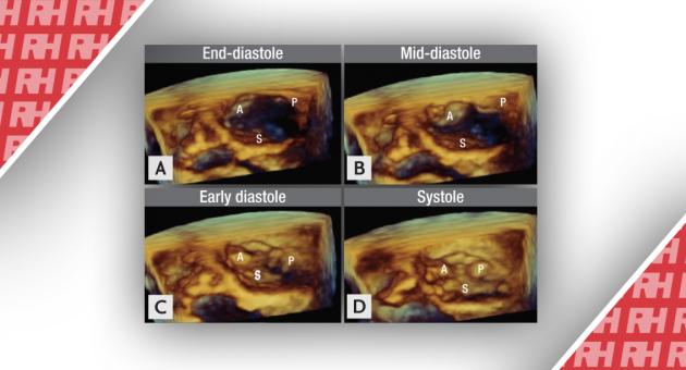 Роль сучасної 3D-ехокардіографії при захворюваннях клапанів серця - Статті RH