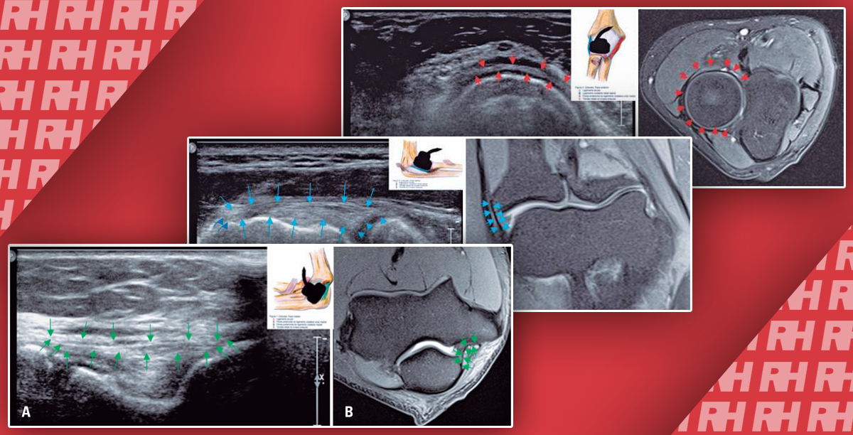 Ультрасонографія і магнітно-резонансна томографія зв'язок ліктьового суглоба: порівняльне дослідження - Статті RH