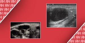 Помилки при ультразвуковій діагностиці поверхневих лімфатичних вузлів - Новини RH