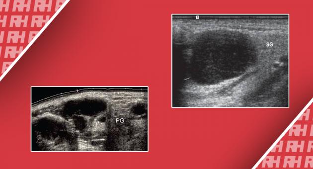Помилки при ультразвуковій діагностиці поверхневих лімфатичних вузлів - Статті RH