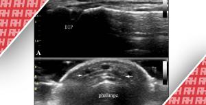 """Роль УЗД в діагностиці гострої закритої травми """"молоткоподібного"""" пальця - Новини RH"""