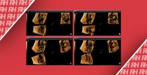 Переваги режиму 4D в візуалізації серця плоду - Новини RH