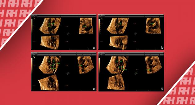 Переваги режиму 4D в візуалізації серця плоду - Статті RH