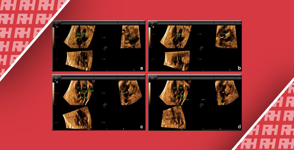 Преимущества режима 4D в визуализации сердца плода - Статьи RH