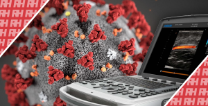 Chison проти коронавірусу - Новини RH