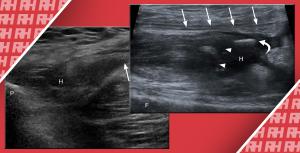 УЗД кістково-м'язової системи: ушкодження нижньої кінцівки. Частина 1. - Новини RH