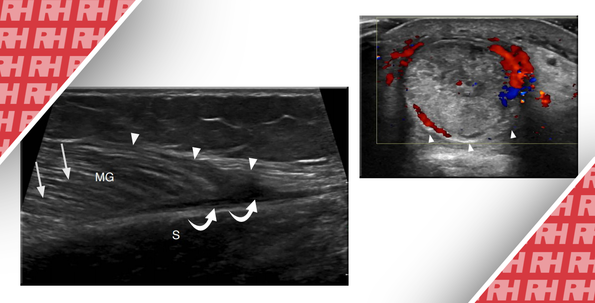 УЗД кістково-м'язової системи: ушкодження нижньої кінцівки. Частина 2 - Статті RH