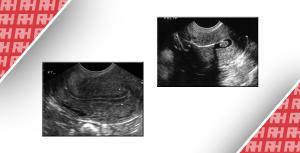 Роль трансвагінального УЗД в лікуванні аномальних маткових кровотеч - Новини RH