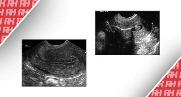 Роль трансвагінального УЗД в лікуванні аномальних маткових кровотеч - Статті RH