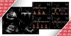Роль ехокардіографії в оцінці та лікуванні гострої серцевої недостатності - Новини RH
