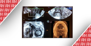 Поверхневе трансперінеальне ультразвукове дослідження і аномалії піхви: області застосування і сильні сторони - Новини RH