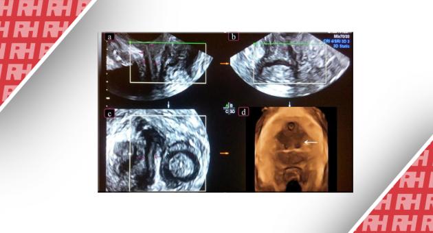 Поверхневе трансперінеальне ультразвукове дослідження і аномалії піхви: області застосування і сильні сторони - Статті RH