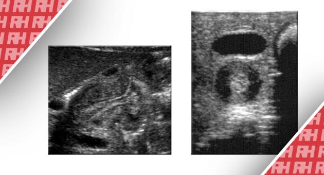 Визуализация при гипертрофическом стенозе привратника - Статьи RH