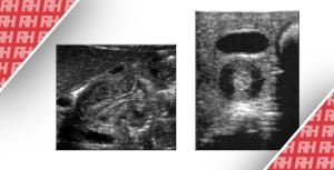 Візуалізація при гіпертрофічному пілоричному стенозі - Новини RH