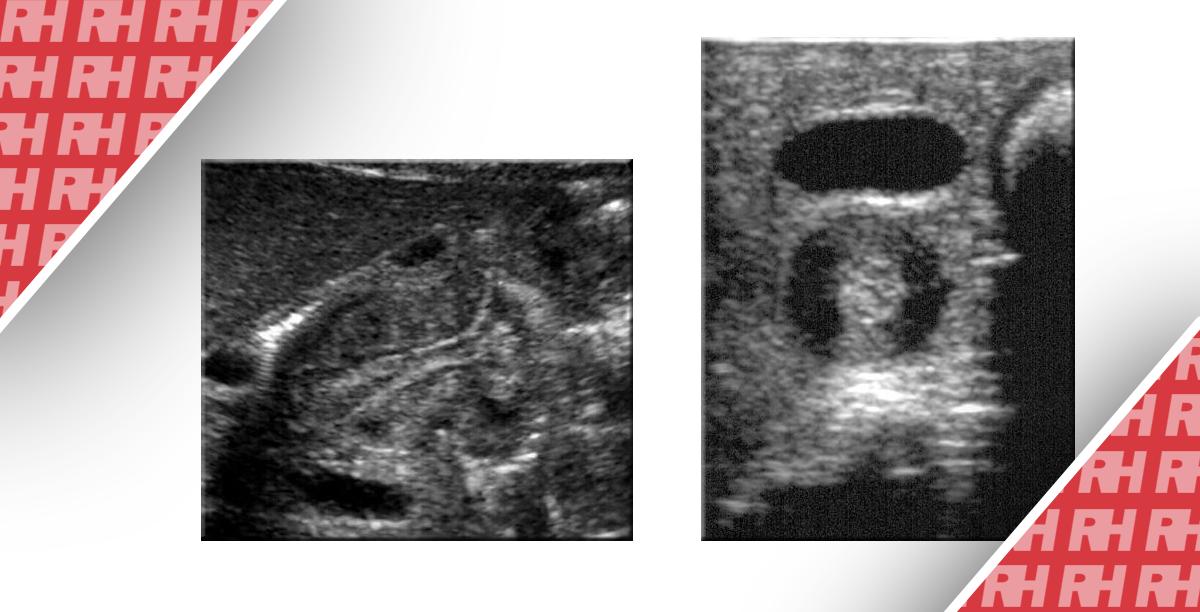 Візуалізація при гіпертрофічному пілоричному стенозі - Статті RH