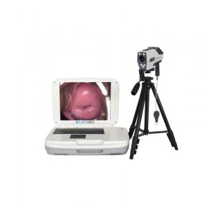 Цифровий портативний кольпоскоп LAPOMED