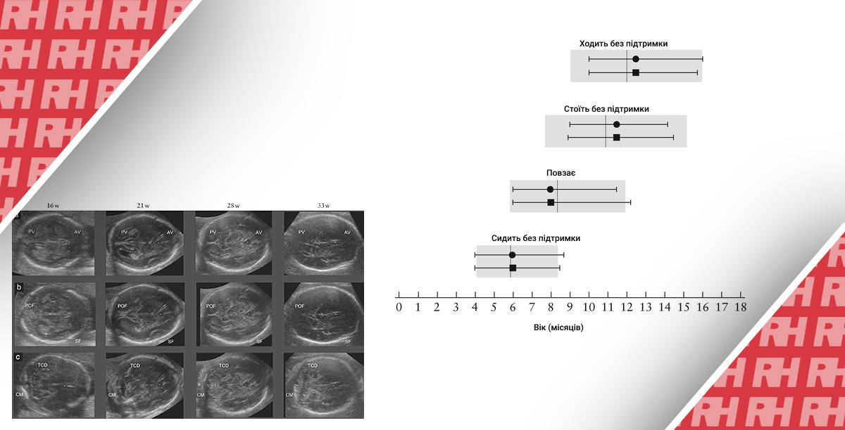 Міжнародні стандарти для структур головного мозку плода, засновані на серійних ультразвукових вимірах в рамках поздовжнього дослідження росту плода в рамках проекту INTERGROWTH – 21st. Частина друга - Статті RH