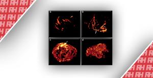 Морфологія судин, що відображається за допомогою тривимірного ультразвукового доплера в якості тесту другого етапу при пухлинах придатків, які важко класифікувати: проспективне дослідження діагностичної точності - Новини RH
