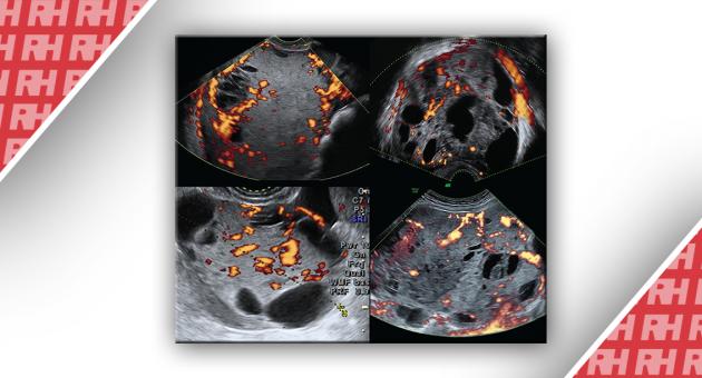 Ультразвукові ознаки злоякісних пухлин жовткового мішка яєчників (пухлини ендодермального синуса) - Статті RH