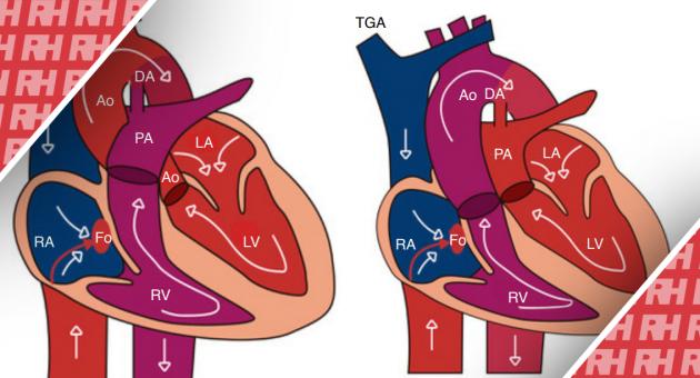 Пренатальна діагностика транспозиції магістральних артерій - Статті RH