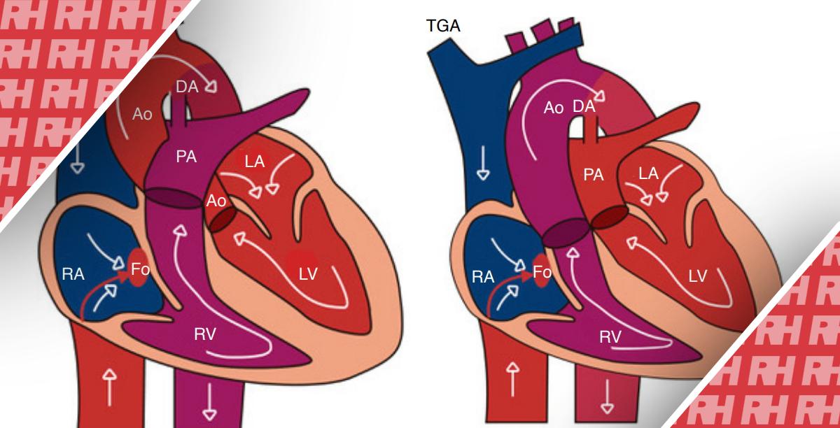 Пренатальная диагностика транспозиции магистральных артерий - Статьи RH