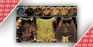 Візуалізація перфузії головного мозку у новонароджених. Частина друга - Новини RH