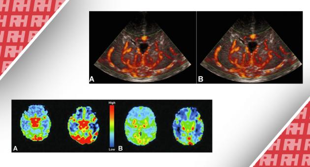 Візуалізація перфузії головного мозку у новонароджених. Частина перша - Статті RH