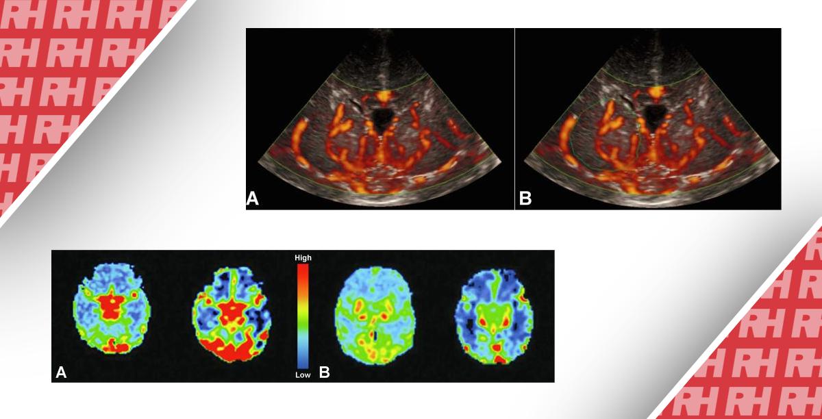 Визуализация перфузии головного мозга у новорожденных. Часть первая - Статьи RH