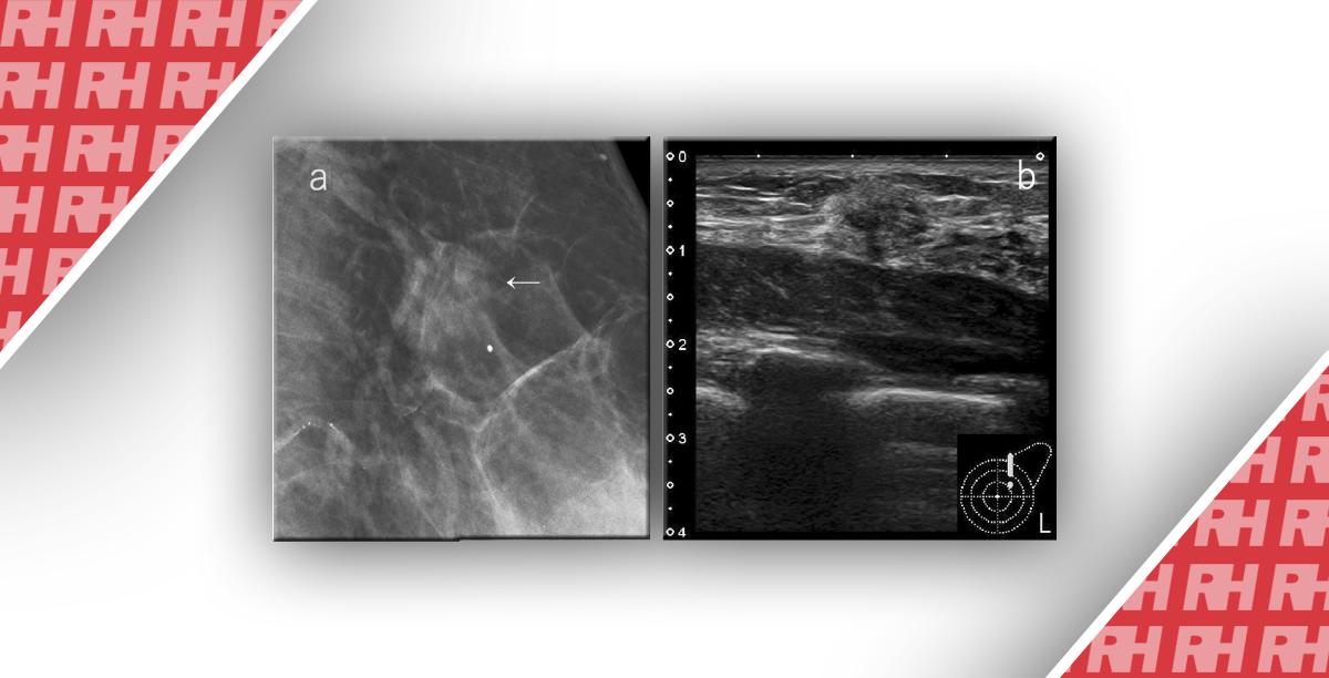 Загальна система оцінки комбінованої мамографії та УЗД для діагностики раку грудей в Японії - Статті RH