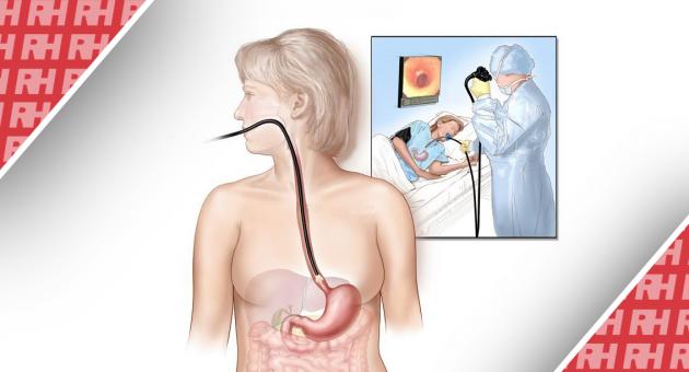 Техніка проведення езофагоскопії - Статті RH