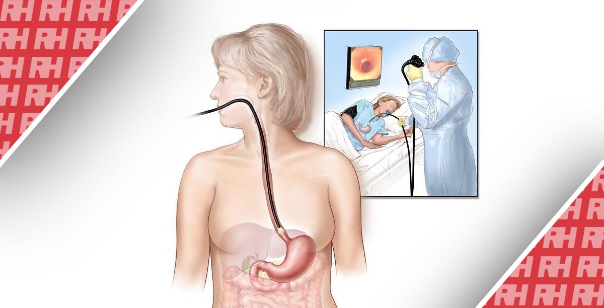 Техника проведения эзофагоскопии - Статьи RH